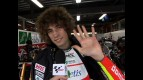 Simoncelli explains hand condition
