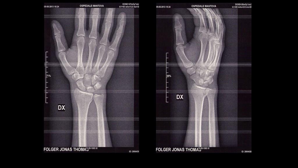 Jonas Folger injures wrist, X-Ray