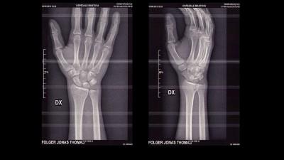 J.フォルガーが右手首を亀裂骨折