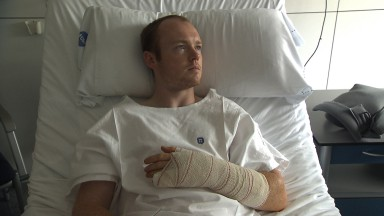 Smith undergoes successful skin graft operation